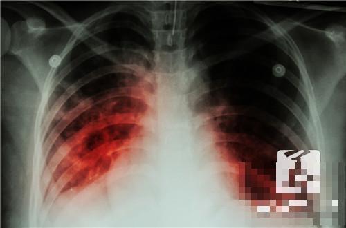 肺部有火怎么办
